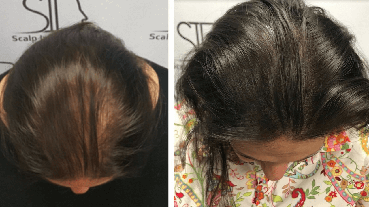 Female Hair Thinning Natural Treatment