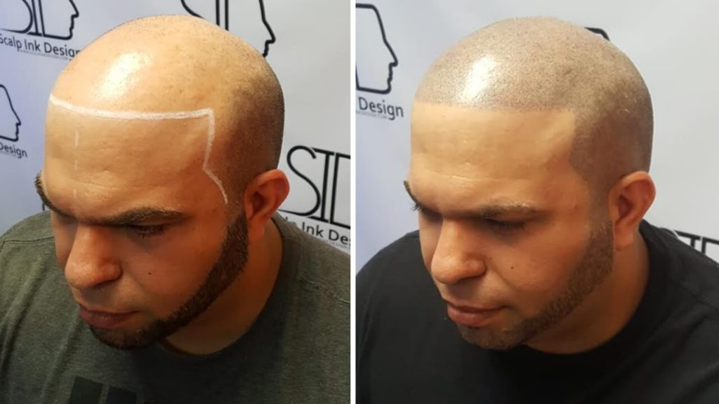 Scalp Micropigmentation in South Florida
