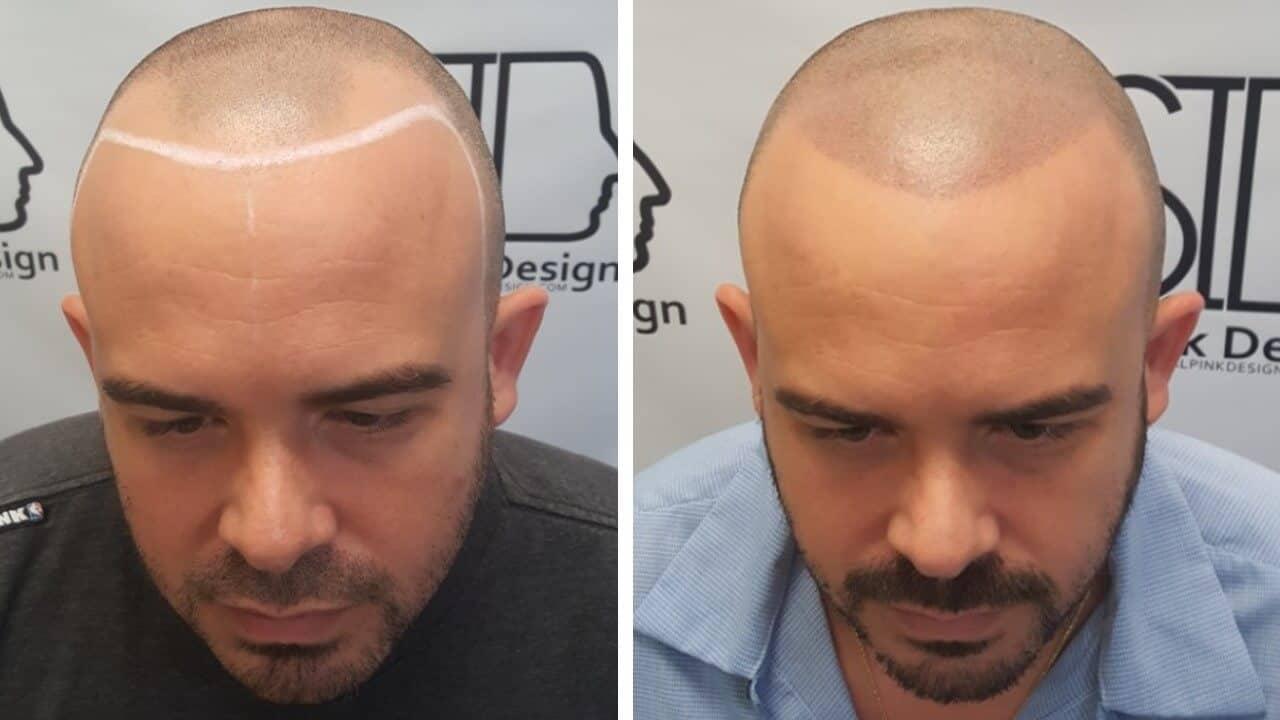 Scalp Micropigmentation In South Florida Scalp Ink Design